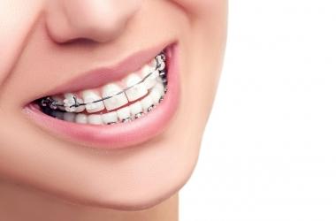 Aparelho dental: descubra os diferentes modelos e suas funções