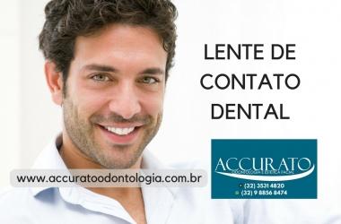 Passo a passo das lentes de contato dental