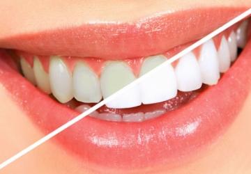 Clareamento dental caseiro funciona mesmo?
