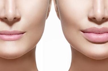Qual é o melhor procedimento para preenchimento dos lábios?