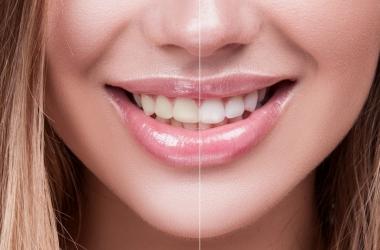 Descubra o que é a lente de contato dental e seus grandes benefícios