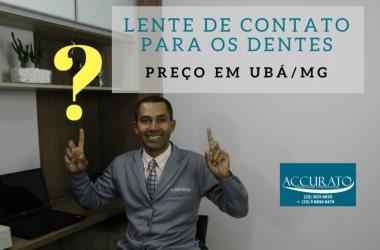Preço das Lentes de Contato para os Dentes em Ubá