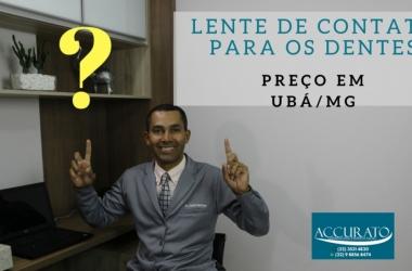 Preço da Lente de Contato Para os Dentes em Ubá