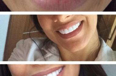 Simaria perdeu os dentes por causa de lentes de contato