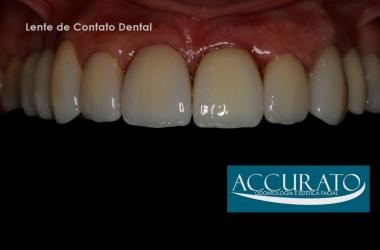 Lentes de Contato para os Dentes de Cerâmica, Laminados Cerâmicos ou Facetas
